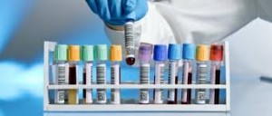 analiza sange